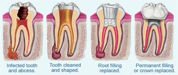 ការព្យាបាលរន្ធឬសធ្មេញ (Root Canal Treatment)